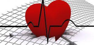 coeur ECG