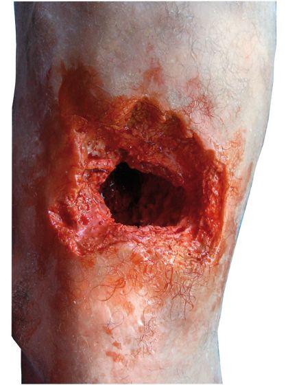 Modèle de jambe avec blessure par balle Erler Zimmer R50020