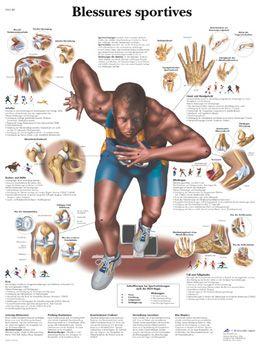 Planche anatomique Blessures sportives VR2188UU