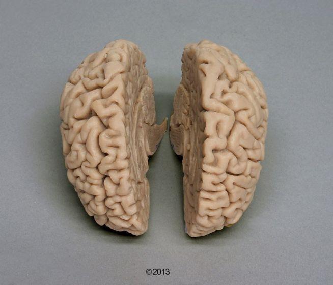 Véritable moulage de cerveau homme C710 Erler Zimmer