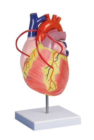 Cœur avec pontage coronarien grossi 2 fois G206 Erler Zimmer