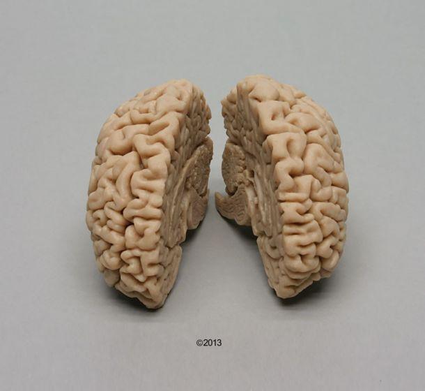 Véritable moulage de cerveau de femme C715 Erler Zimmer
