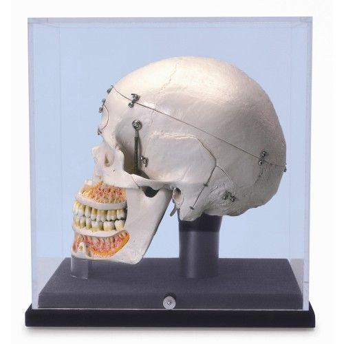 Crâne de démonstration de luxe, avec vitrine A27/9