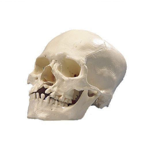 Crâne avec fissure du maxillaire et du palais A29/3