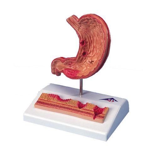 Estomac avec ulcères gastriques K17