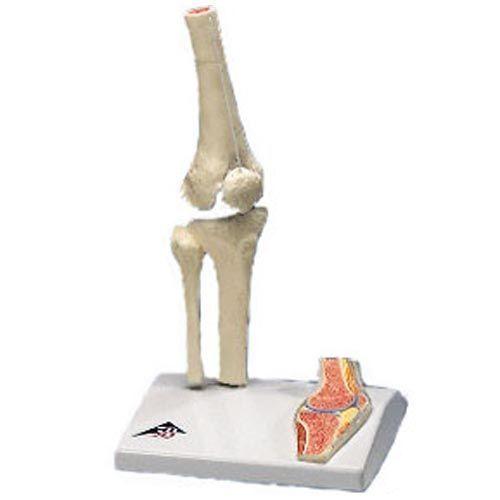 Mini-articulation du genou avec coupe transversale A85/1
