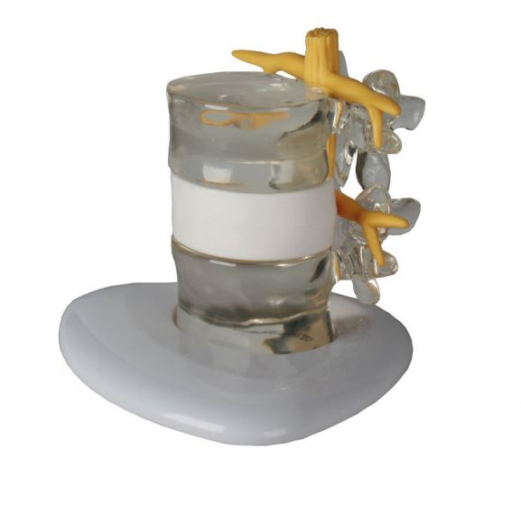 Modèle de simulation d'hernie discale 4400 Erler Zimmer