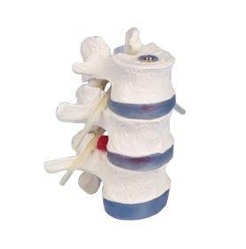 Vertèbres lombaires avec hernie discale 4048 Erler Zimmer