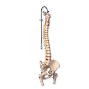 Colonne vertébrale flexible pour la forte sollicitation, avec des moignons de fémur A59/2