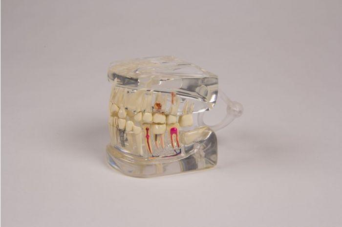 Mâchoire humaine transparente avec denture D19 Erler Zimmer