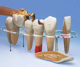 Modèle de prothèse dentaire, en 7 parties, agrandie 10 fois - Allemand W42528