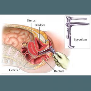 Speculum vaginal